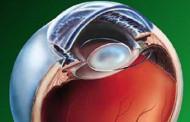 Incisão pioneira com células-tronco regenera olhos de crianças com catarata