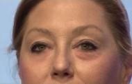 Cientistas desenvolvem 'segunda pele' para esconder rugas e olheiras