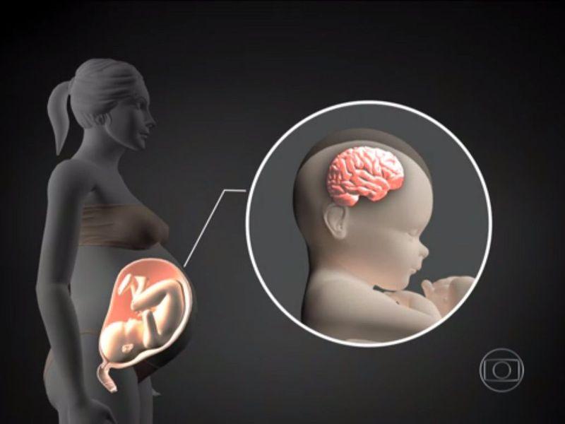 Estudo mostra que zika leva células do cérebro à autodestruição