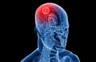 Como a aspirina líquida pode combater tumores cerebrais