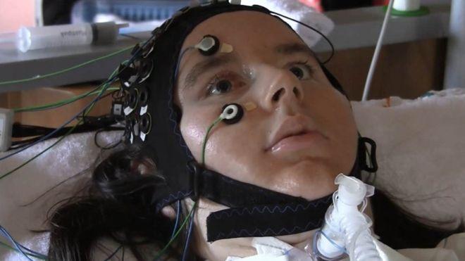 Computador que 'lê' pensamentos permite a pacientes com paralisia total se comunicar
