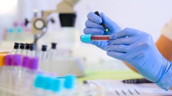 Exame de sangue detecta ressurgimento de câncer com 1 ano de antecedência