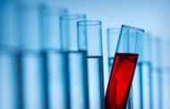 Como exames de sangue podem prever cânceres de intestino e pulmão