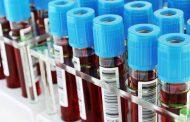 Exame de sangue mostra melhor tratamento para câncer de próstata