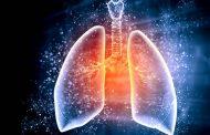 Anvisa aprova nova terapia contra câncer de pulmão