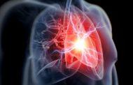 Anti-inflamatório pode reduzir risco de ataques cardíacos e acidentes vasculares
