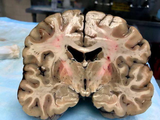 O surpreendente resultado da autópsia em cérebro de atleta que matou amigo e se suicidou na prisão