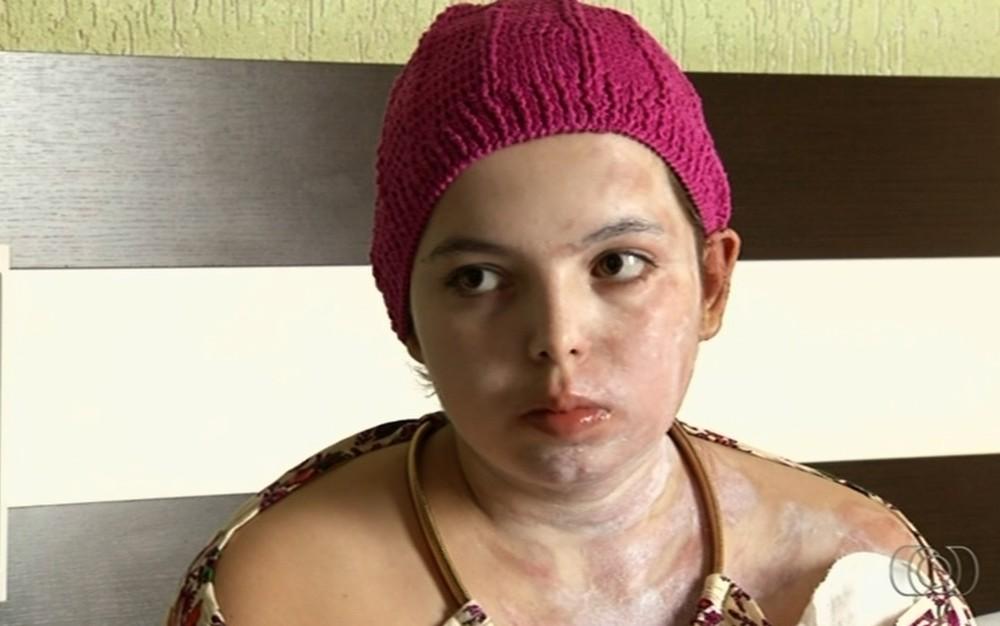 Jovem que teve 45% do corpo queimado por desconhecida lembra angústia: 'Nunca fiz mal a ninguém'