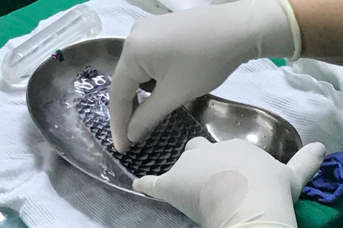 Brasil se torna pioneiro em reconstrução de vagina com pele de peixe
