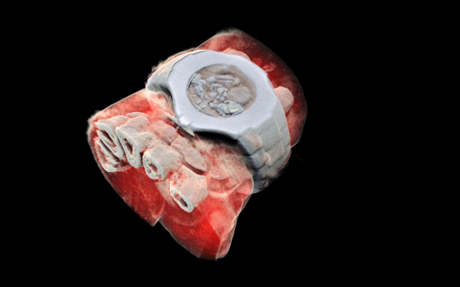 Cientistas desenvolvem primeiro raio-x 3D colorido do mundo