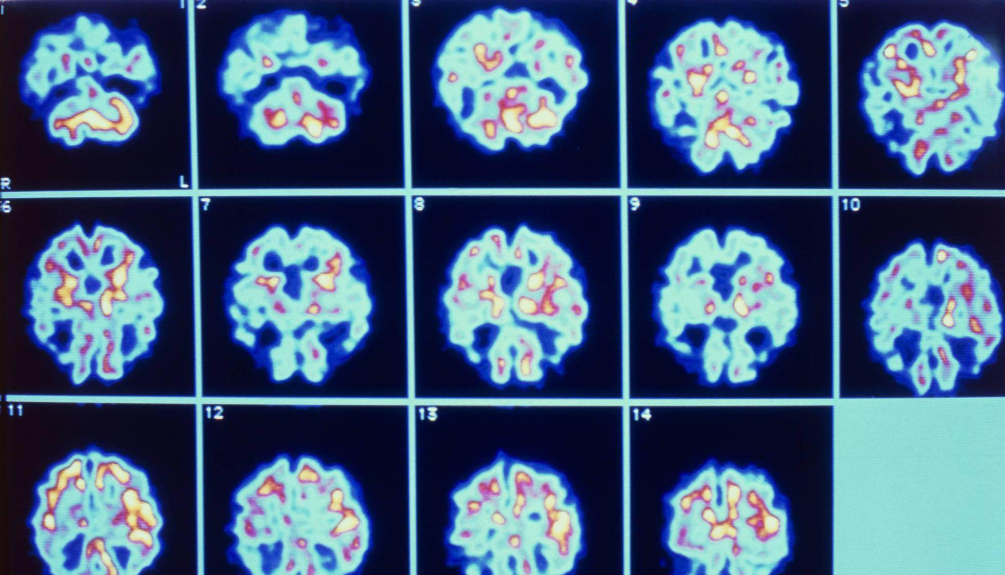 Desafios na busca de um tratamento efetivo contra o Alzheimer