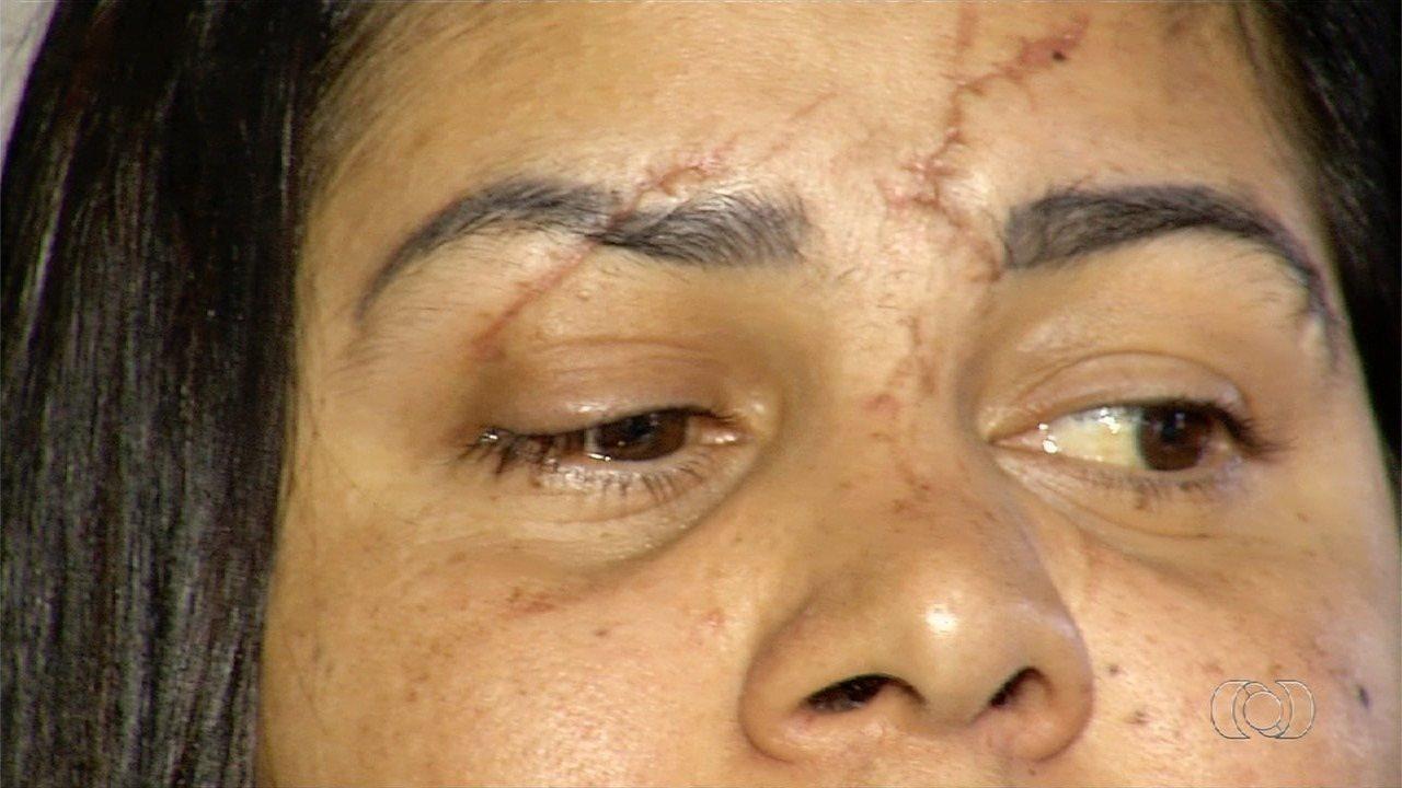 Dona de casa relata que ficou cega de um olho após agressão do namorado com garrafa de vidro