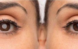 Ver borrões depois de uma dor de cabeça pode ser sinal de enxaqueca ocular