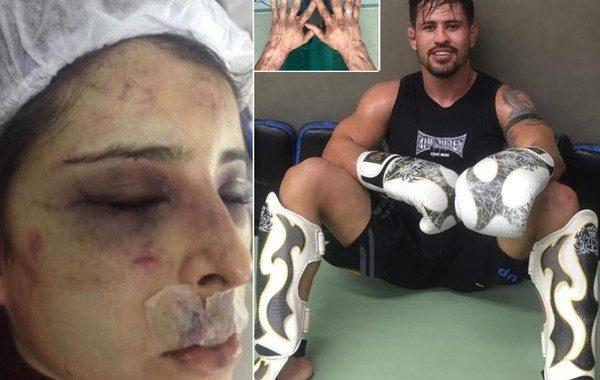 Médica relata agressão de namorado lutador, que foi solto após pagar R$ 10 mil de fiança